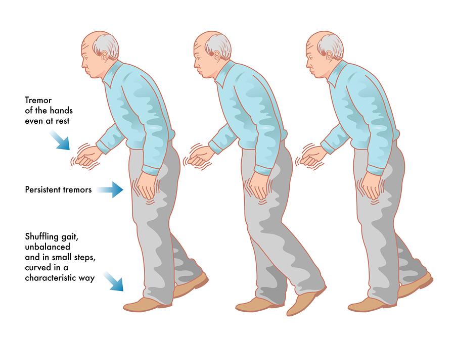 bigstock-parkinson-s-disease-64550221