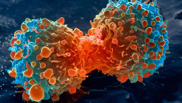lung-cancer-cell-dividing-article-__v70030169