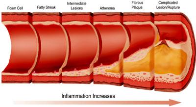 atherosclerosis_rupture