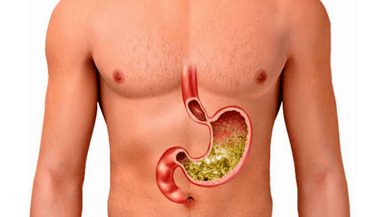 how-to-reduce-stomach-acid-and-gas-naturally-2