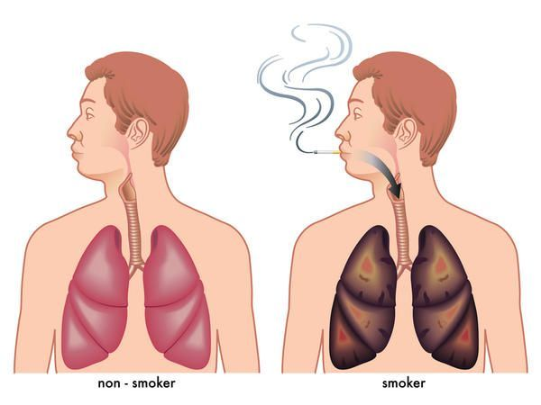 da1be9bb08833fa5eb23331f417ca9c2-smoking-lungs-anti-smoking