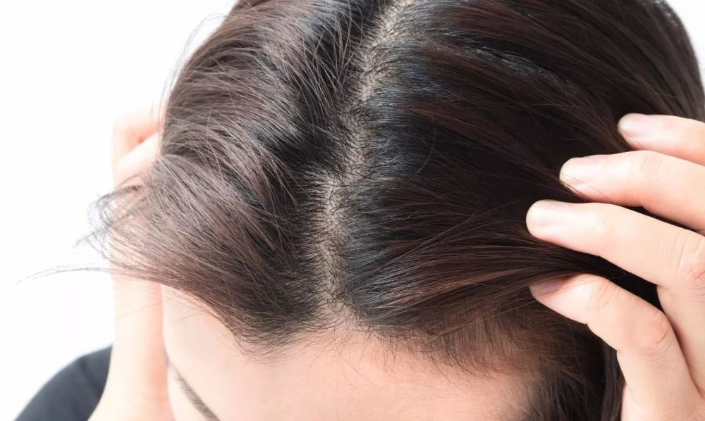 Postpartum hair loss examination
